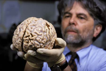 11Kalil_Ron_human_brain00_2