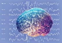 electroencefalo