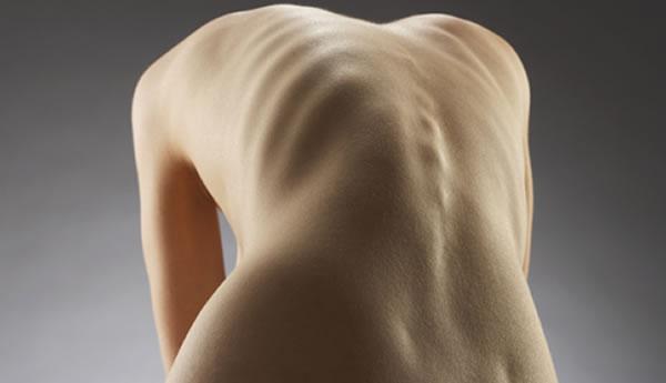 Se-unen-blogueros-contra-la-bulimia-y-la-anorexia