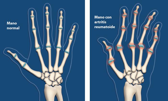 Artritis-rheumatoide-imagen