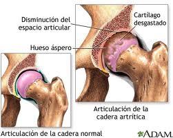 Artritis4