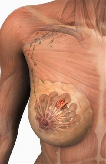 breast-cancer6