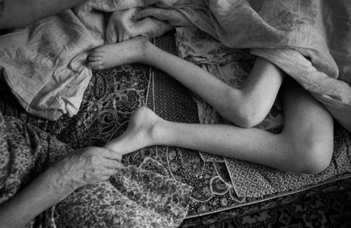 Annya Pesenko - Chernobyl Victims Documentation (Ukraine and Belarus: 2005)
