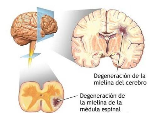como-afecta-esclerosis-multiple-nuestro-organ-L-WcuxJZ