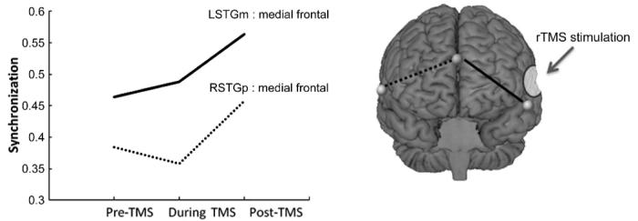 sincronizacion-cerebral