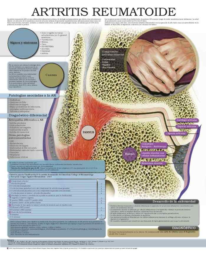5270-Artritis-reumatoide