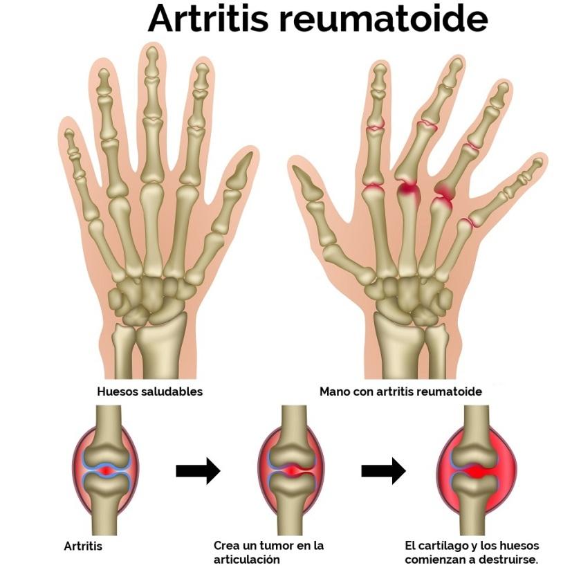 Artritis-reuma