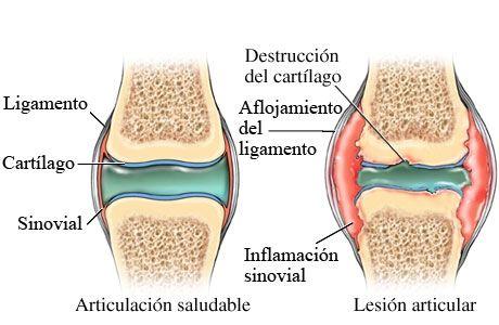 artritis-reumatoide-7