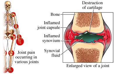 artritis-reumatoide-articulaciones