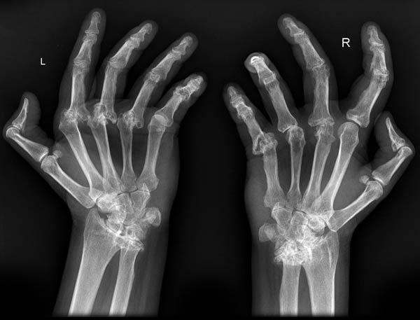 Resultado de imagen de mujer se cura de artritis al ver pelicula de jesus