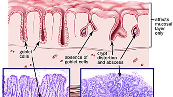 Histology-of-Ulcerative-colitis1-587x330