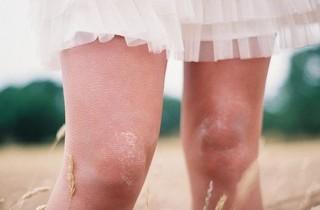 knees-320x210