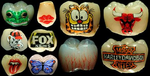 tatuaje-dientes-1_210514_1400662623_99