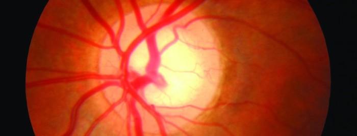 glaucoma-940x360