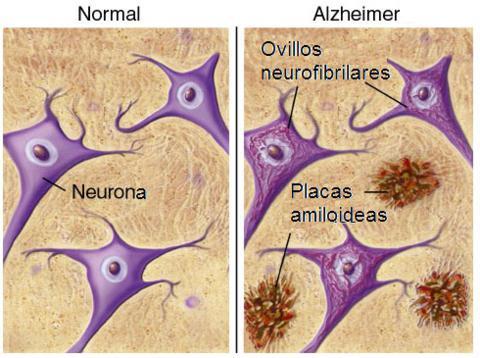 alzheimer-beta-amiloide-triplenlace_com_